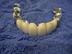 歯科技工士さんの画像