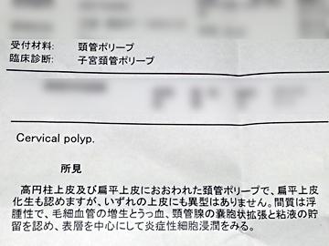 頸管 ポリープ 子宮
