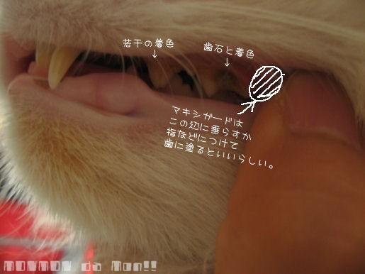 歯石とマキシガード.JPG